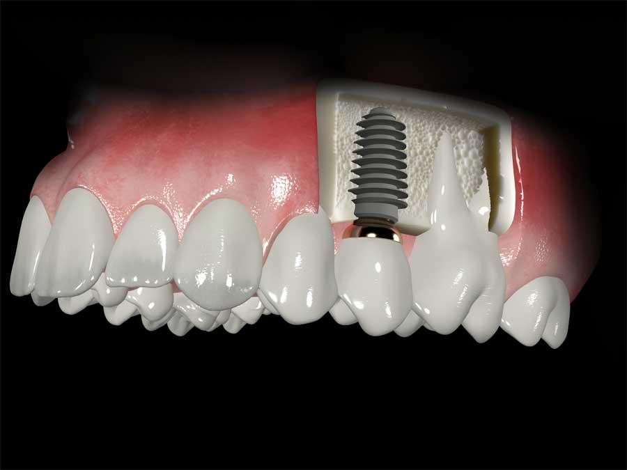 5-corte-del-implante-correg