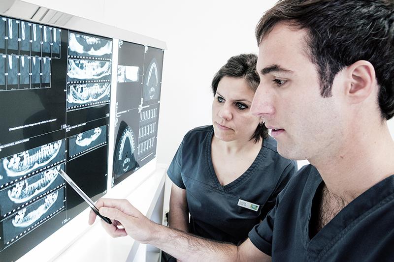 implantes-dentales2